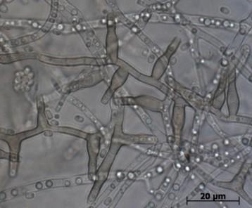 Pilz: Erreger des Eschentriebsterbens, H. fraxineus © BOKU/Schwanda